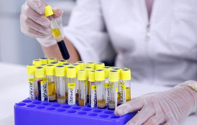 Сдача анализа крови на гормон во время месячных