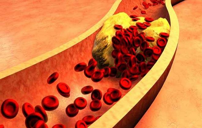 Лишний холестерин в организме