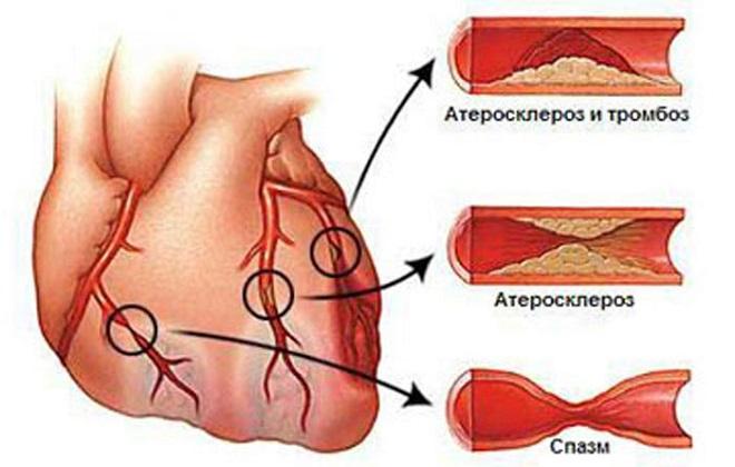 Атеросклероз аорты сердца: что это такое, как лечить, коронарных ...