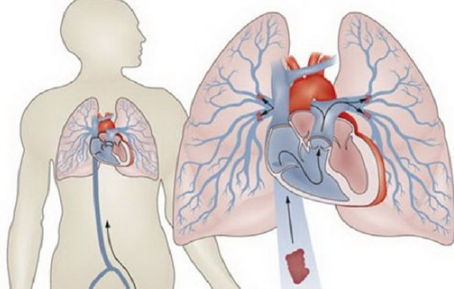 Тромб в легких: процент выживания, тромбоз легочной артерии ...