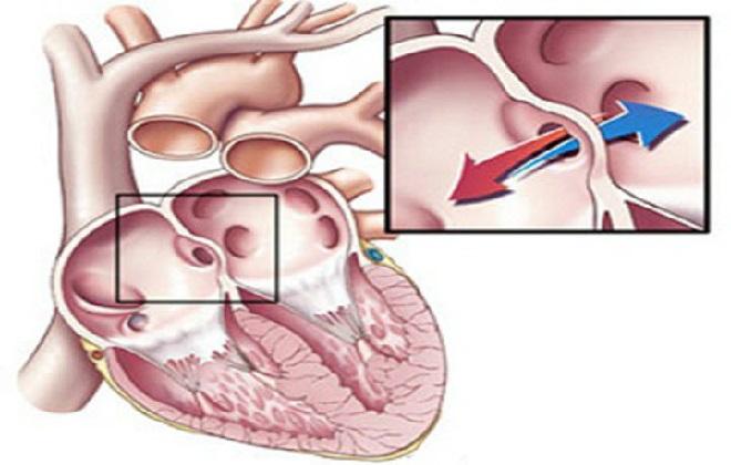 Измерение перегородки сердца человека
