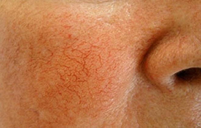 Красный капилляры на лице у женщины