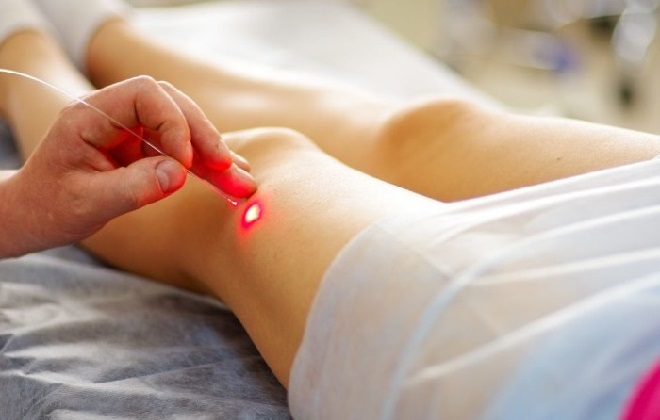 Лазерная процедура в кабинете врача флеболога