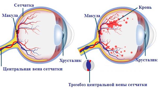 Место образования тромба в глазу