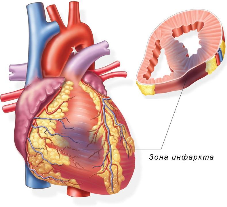Место поражения сердца при инфаркте миокарда