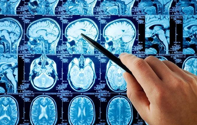 МРТ головного мозга пациента перенесшего инсульт