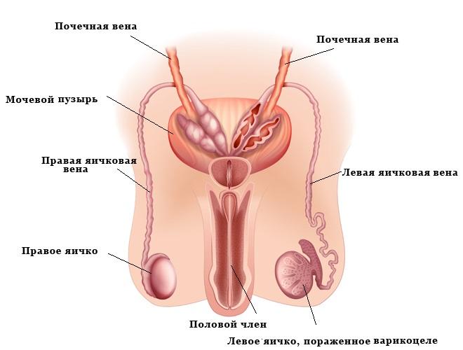 варикоцеле у мужчин на яичках последствия