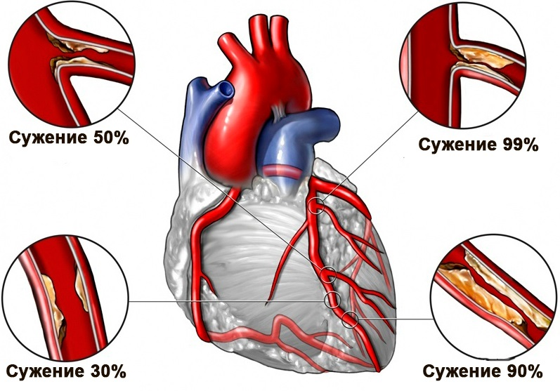 Ишемическая болезнь сердца: что это такое, симптомы, лечение ...