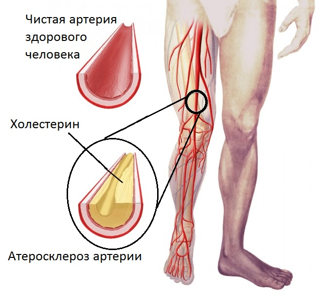 Ноги мужчины с закупоркой вен
