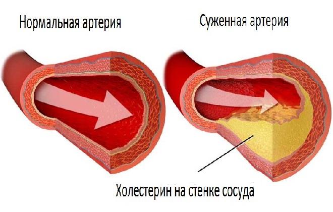 Нормальный сосуд и закупорен холестерином