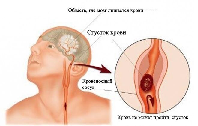 Область мозга оставшаяся без подачи крови по сосудам