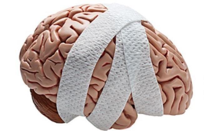 Образец здорового человеческого мозга