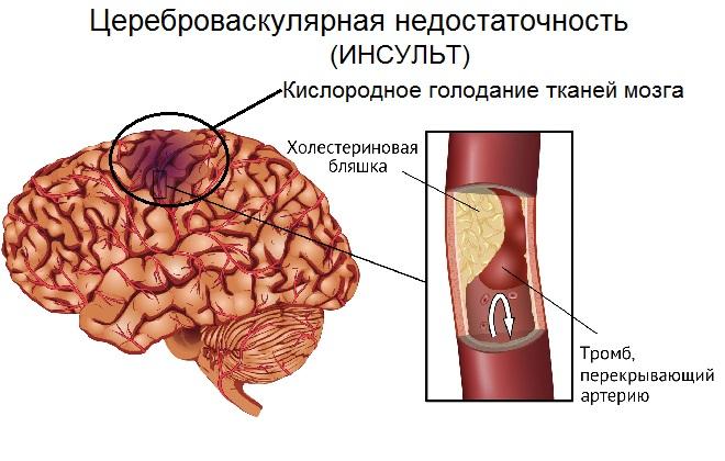 Ограничение мозговых клеток от попадания в них кислорода