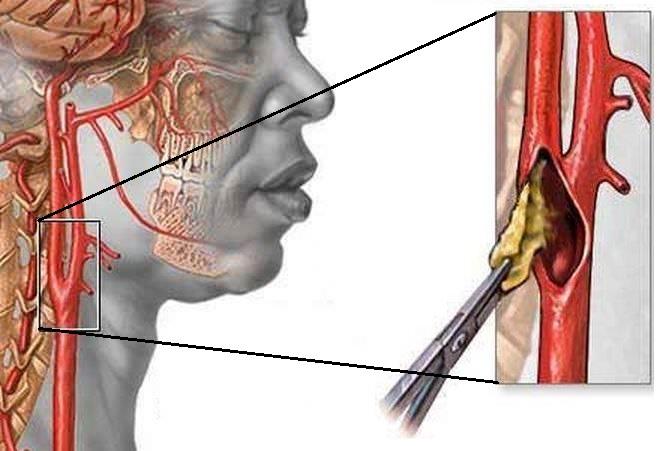 Оперативное вмешательство в артерии головного мозга