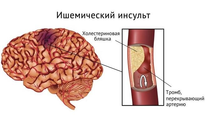 Плохой холестерин в сосудах головного мозга делает закупорку и тромбоз