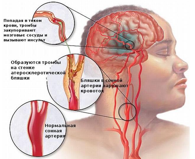 Попадание с кровью тромба в мозг