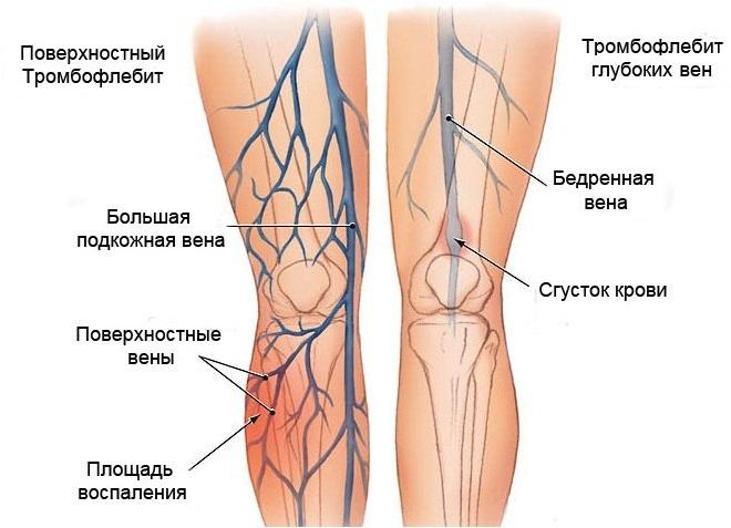 Поверхностные и внутренние вены ног