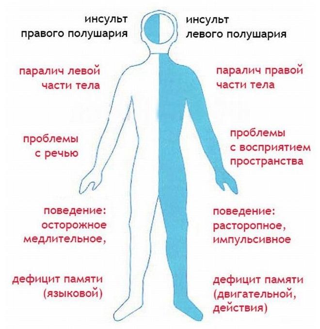 Разница между последствиями инсультов у человека