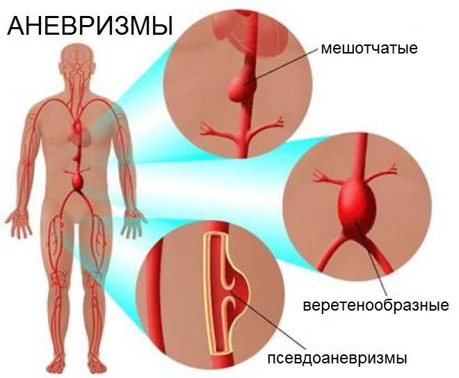 Аневризма: это что такое, расширение сосудов, симптомы и признаки ...