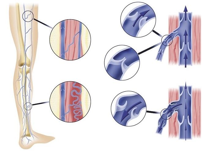 Разновидности хронической венозной недостаточности нижних конечностей