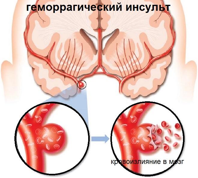 Разрыв стенки сосуда и кровоизлияние в мозг человека