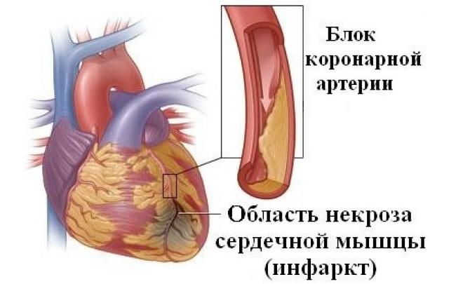 Сердечные артерии забиты холестерином