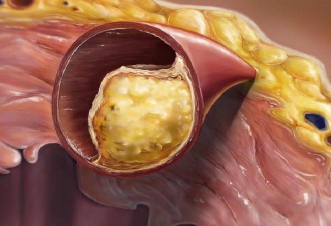Сосуд закупорен холестериновой бляшкой