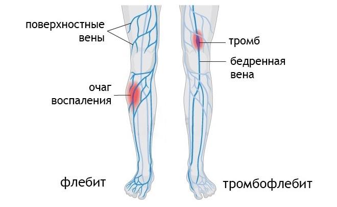 Сравнение флебита и тромбофлебита на ногах