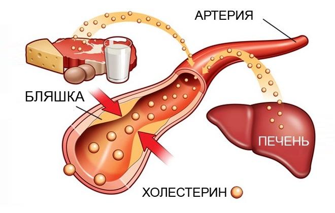 Схема попадания холестерина в организм человека
