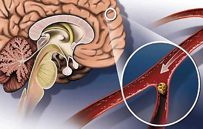 Тромб в сосудах головного мозга человека