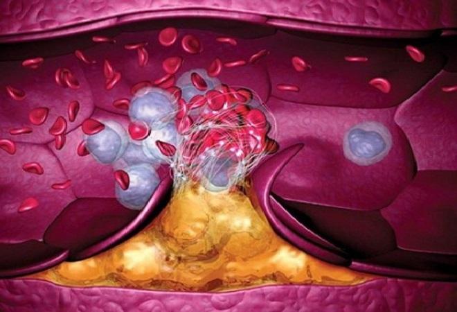 Тромбирование как причина большого количества холестерина