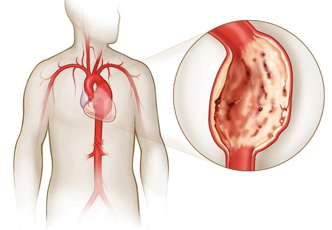 Увеличение аорты ведет к ее разрыву и внутреннему кровотечению