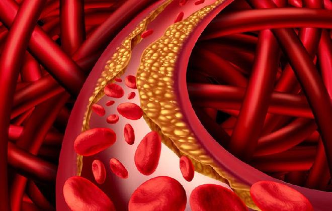 Вены забитые холестерином подвергаются тромбозу