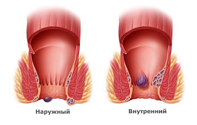 Тромбоз наружного геморроидального узла лечение