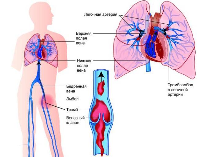 Образование тромба в легочной артерии