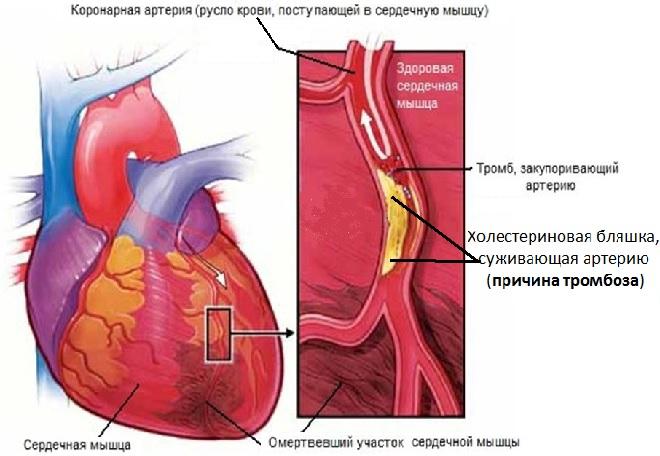 Холестериновая бляшка суживающая артерию является причиной образования тромбов