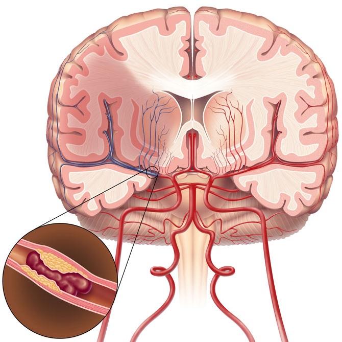 Забитые кровотоки холестериновым налетом