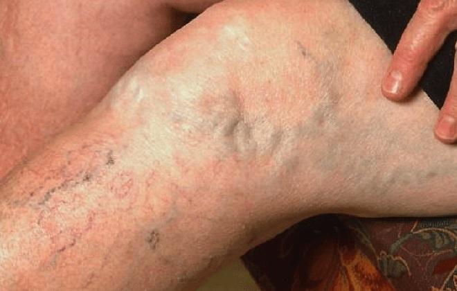 Запущенный варикоз на левой ноге