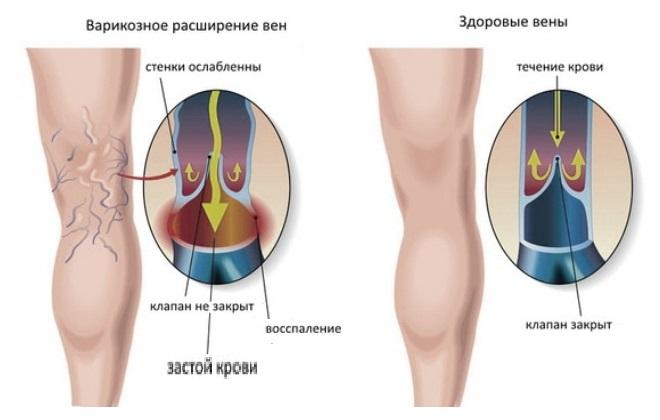 Застой крови при венозном расширении вен у человека