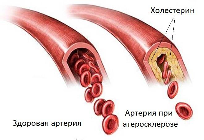 Лікування атеросклерозу народним способом