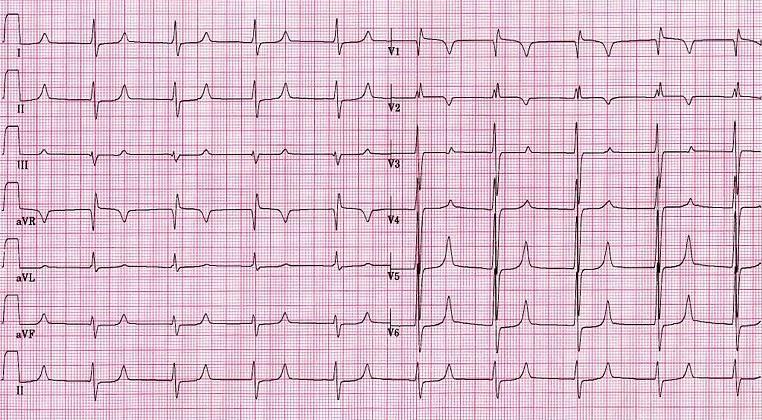 Электрокардиограмма при инфаркте миокарда