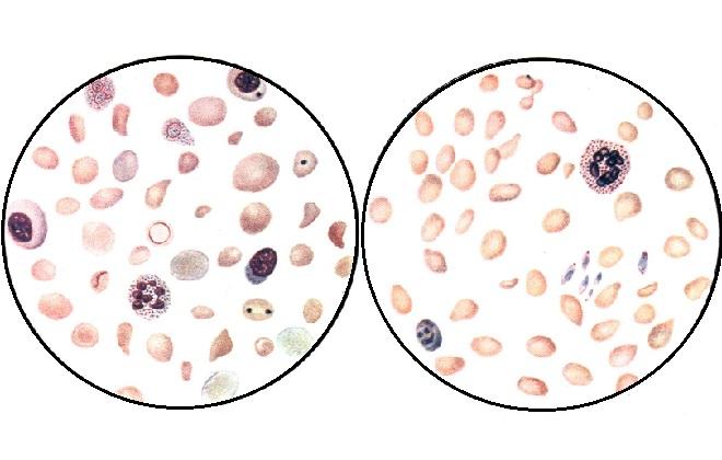 Форма крови при наличии анемии