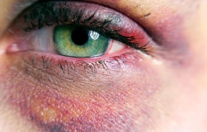 Глаз залитый кровью после удара