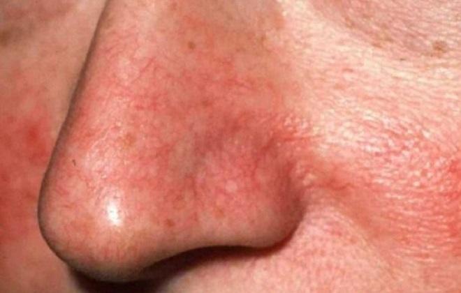 Красные верхние сосуды на носу