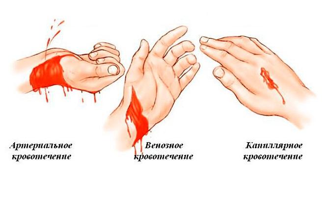 Виды и способы остановки кровотечений