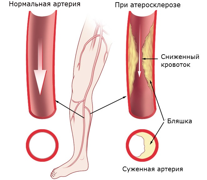 Методы лечения атеросклероза или закупорки вен на ногах