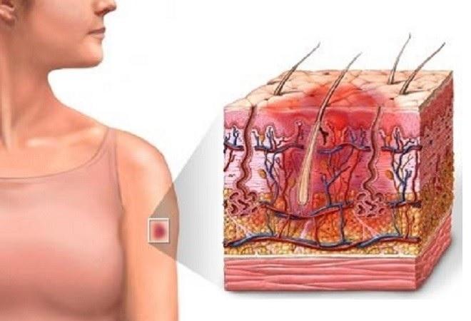 Лечение подкожной гематомы