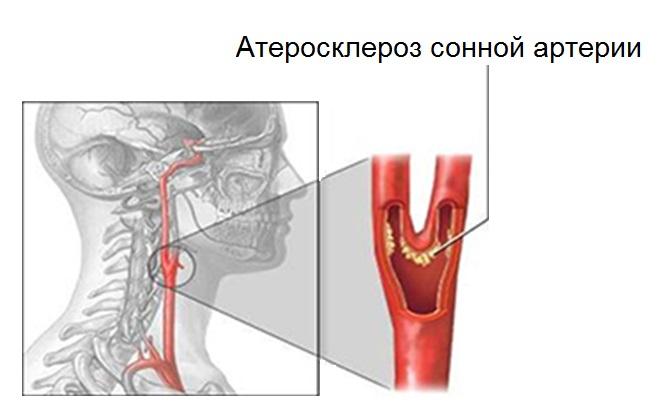 Отложение плохого холестерина в сонной артерии