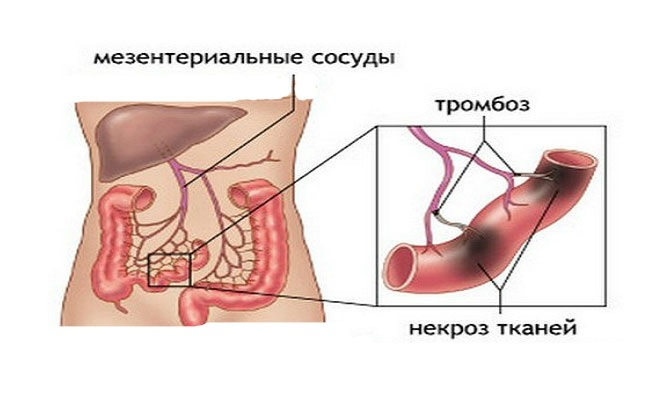 Отмирание тканей кишечника