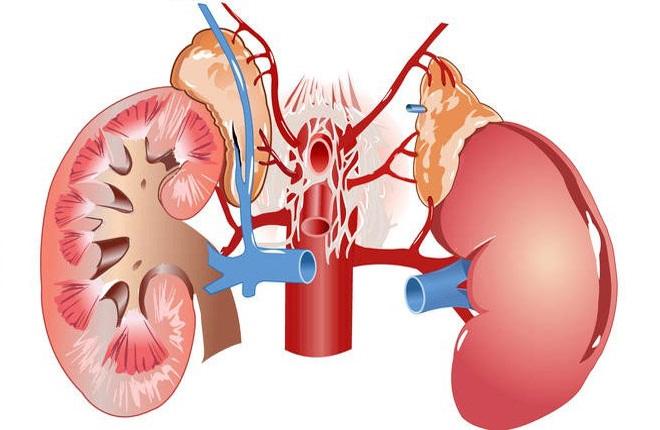 Реноваскулярная гипертензия – что это такое и как лечить патологию